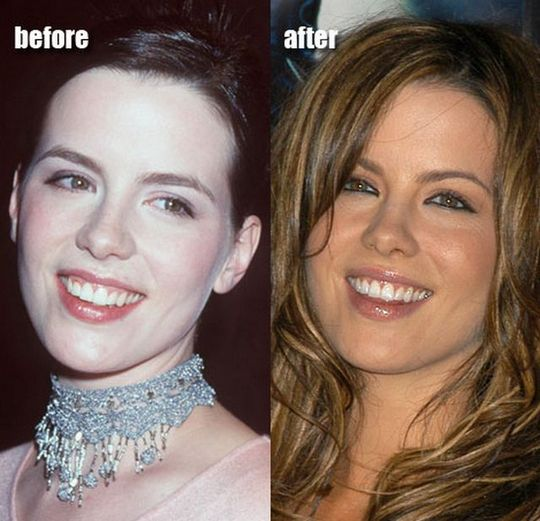 kate-beckinsale-plastic-surgery