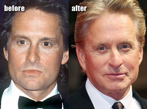 michael_douglas_facelift1