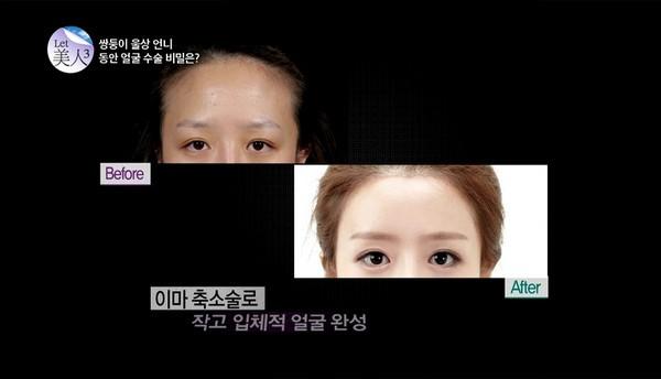 korean-twins-4