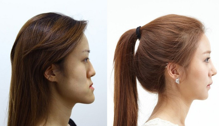 korean-twins-6